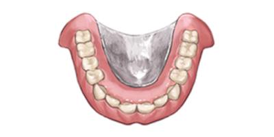 金属床義歯(チタン・コバルトクロム)
