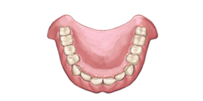 保険の入れ歯(プラスチック義歯)