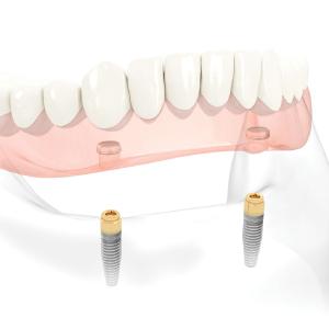 入れ歯を固定するためのインプラントオーバーデンチャー