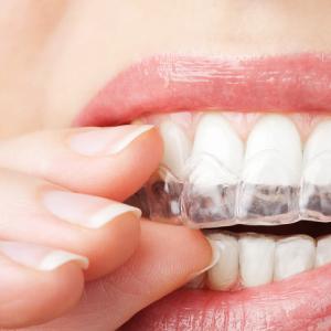 歯ぎしりについて(マウスガードで予防できます)